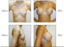 How to Enlarge Breast | Hair Treatments | Scoop.it