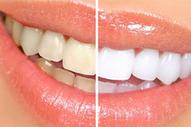 Veneers Dentistry Kuwait | Dental Clinic in Kuwait: Restorative and Cosmetic Dental Center | Scoop.it