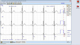Buy Medical Equipment Like Holter Ekg Online | Nasiff | Scoop.it