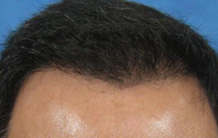 FUE Hair Transplant to stop baldness by follicular extraction | Health | Scoop.it
