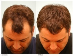 HAR VOKSE | Hair Growth for Men and Women: Get Your Dream Crop Back With Hair Gain Formula | HAR VOKSE | Scoop.it