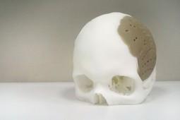 Implantes de hueso realizados con impresión 3D | Tecnologia Educativa al alcance de la mano | Scoop.it