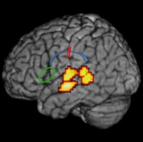 Root causes of dyslexia unraveled   Developmental   Scoop.it