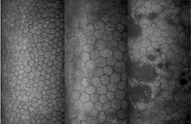 Ojo seco asociado con pérdida de células endoteliales de la córnea | SALUD OCULAR: GAFA TÉCNICA, OJO SECO Y DEPORTE GRADUADA | Scoop.it