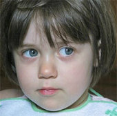 La sindrome di Rett | Disturbi dell'età evolutiva | Scoop.it