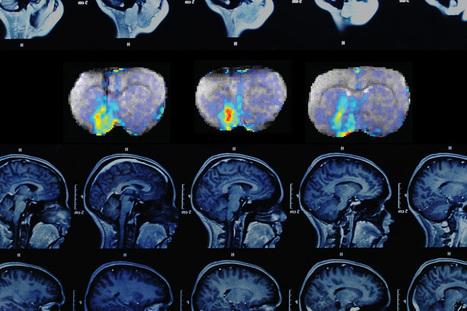 Delving deep into the brain | Social Neuroscience Advances | Scoop.it
