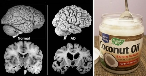 Viral Alternative News: How To Treat Alzheimer's Starting With 3 Teaspoons of Coconut Oil Per Day | Fitness, Health, Running and Weight loss | Scoop.it