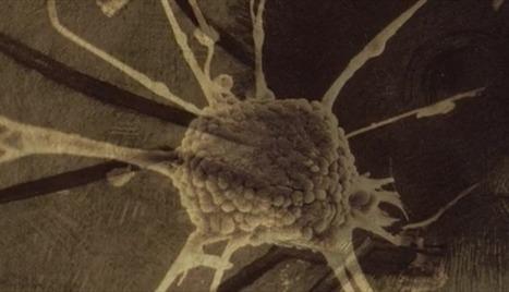 L'araignée et le neurone | Variétés entomologiques | Scoop.it