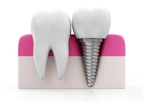 Dental Implants are Next Best Thing to Your Natural Teeth - Intro Into Blog | Dental Clinic | Scoop.it