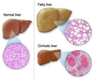 Exploring the Main Reason For Liver Disease in Children | Liver Transplant India | Scoop.it