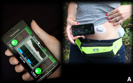 Smartphone platform shows promise as 'artificial pancreas' to control diabetes | health and illnesses | Scoop.it
