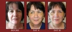 MACSlift Patient – Post-op Day 10! - Utah Facial Plastic Surgery   Facial Plastics   Scoop.it