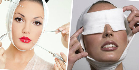 Vanity Fair: Plastic Surgery and How it Helps Women | Cosmetic Surgery | Scoop.it