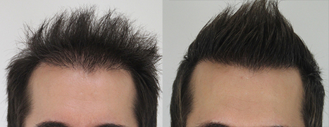 Hair Transplant Will Help You Look Younger   Royal Cosmetic Surgery   Scoop.it
