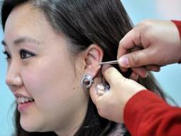 Scientists query ear acupuncture study - Independent Online | Alternative Health Treatment,Alternate Health Treatment | Scoop.it