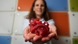 Surgeons who use 3D printing to help explain patients' conditions to them | Doctor | Scoop.it
