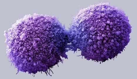 'Universal Cancer Vaccine' With No Side Effects! Is This The End Of Cancer?!   Simple Capacity + Guest Posts   Scoop.it