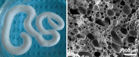 Scientists Create Injectable Foam To Repair Degenerating Bones | 21st Century Innovative Technologies and Developments as also discoveries, curiosity ( insolite)... | Scoop.it