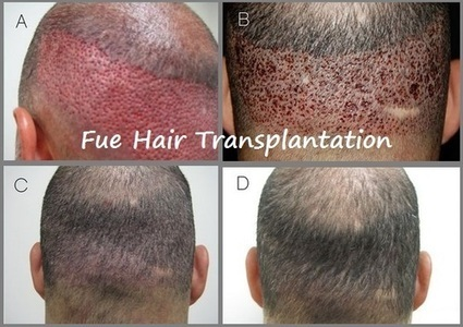 Why FUE Hair Transplantation? | Prohair Clinic | Scoop.it