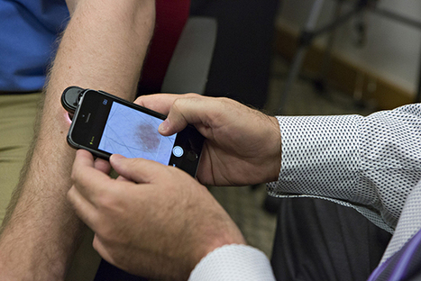 This smartphone app can detect skin cancer | The e-health Network | Scoop.it