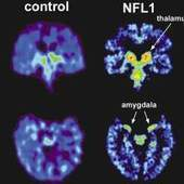 New Study Finds Brain Damage in Living Ex-NFL Players – Concussion Watch - FRONTLINE | Athlete's Concussions | Scoop.it