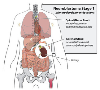 FDA approves Cancer Immunotherapy Drug for Children with Neuroblastoma | Pediatrician Nation | Scoop.it