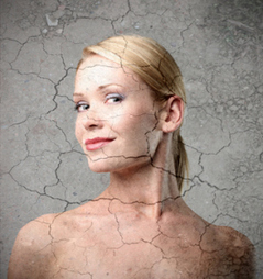 How to counter the aging skin problem?   Botox   Scoop.it