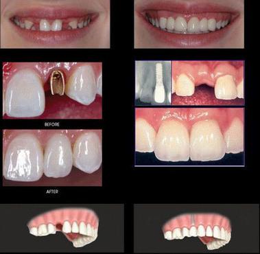 Implant Dentistry   Adam Scott   Scoop.it