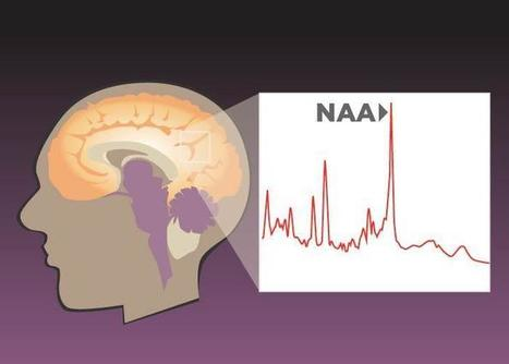 Brain markers of numeric, verbal, and spatial reasoning abilities found | Teacher's corner | Scoop.it