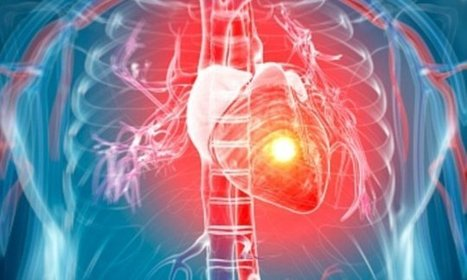 Common blood-thinning heart drug 'increases the risk of Alzheimer's' | Cardiovascular Disease: PHARMACO-THERAPY | Scoop.it