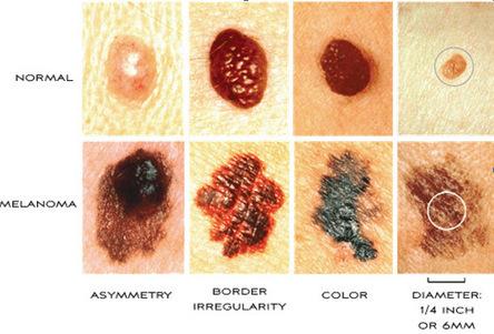 Skin Specialist Pune | Pigmentation Treatment in Pune | Skin Care Clinic Pune Mumbai India | Skin Hair Surgery Clinic | Scoop.it