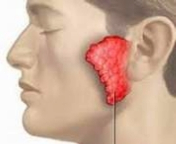 Nguyên nhân triệu chứng cách chữa trị bệnh quai bị | anhdanh_90 | Scoop.it