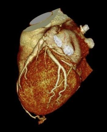 Puentes miocardicos: ¿hallazgo casual de autopsia?/Myocardial bridges, a casual find of autopsy?   amplia-mente   Scoop.it