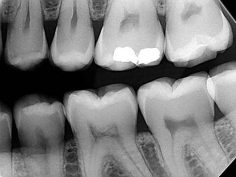 WISDOM TOOTH EXTRACTION MELBOURNE – Complications | Wisdom Teeth Dentist | Scoop.it