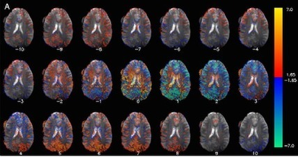 How Stories Affect Our Brains   Training   Scoop.it