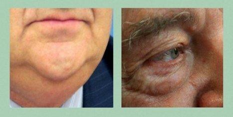 Papada y bolsas de ojos, principales complejos en los hombres. Efesalud.com | Apasionadas por la salud y lo natural | Scoop.it