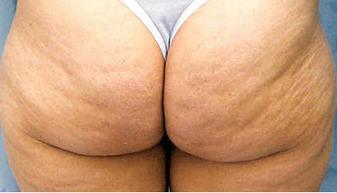 Blog de Rachele Sobre Como Combatir La Celulitis | Celulitis y Estrias | Scoop.it