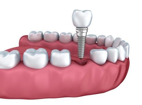 Myths about Dental Implants Debunked | Getdefenn Links | Scoop.it