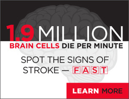 Research breakthrough to revolutionize stroke treatment | Biomedical Beat | Scoop.it
