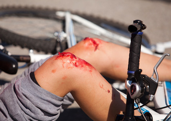 Bicycle Accidents and You | Bicycle Safety and Accident Claims in CA | Scoop.it