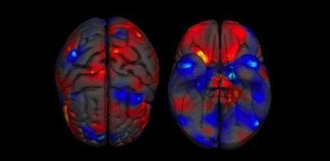 New study examines thousands of brains to reveal differences between male and female brain structure | Amazing Science | Scoop.it