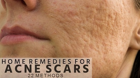 Home Remedies for Acne Scars on Face (22 Methods) | Beauty Tips | Scoop.it