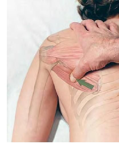 NW Calgary Chiropractor Massage & Physiotherapy- Shoulder Treatment 3 | Hamptons ChiroCare | Hamptons Chirocare | Scoop.it