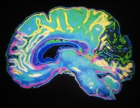 Researchers observe language learning skills through brain imaging | Learning & Training - www.click4it.org | Scoop.it