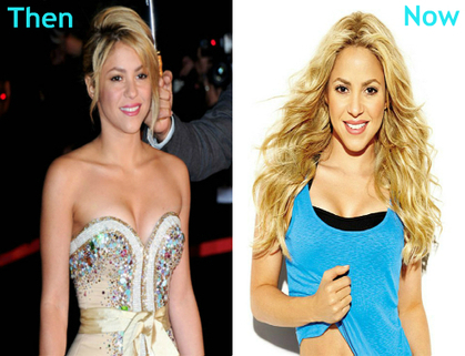 Shakira Before and After Picture | Celebrity Plastic Surgery | Simple and Easy Nail Art Designs which gave an Attractive Looks to your Nail | Scoop.it