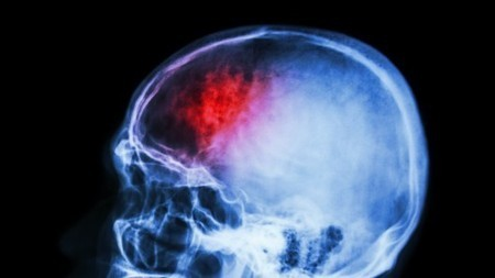 Stem cell stroke therapy shows promise after first human trial | Amazing Science | Scoop.it