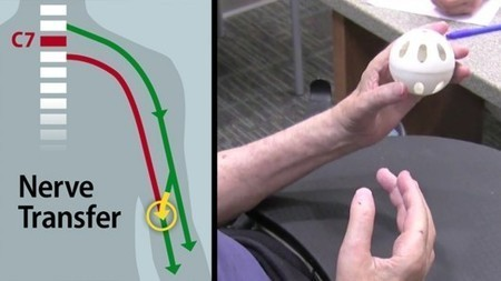 Partial Hand Function Restored in Quadriplegic Patient | Longevity science | Scoop.it