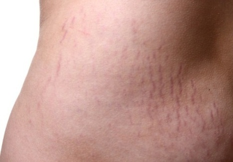 How to Minimize Stretch Marks in Several Ways | stretch marks | Scoop.it