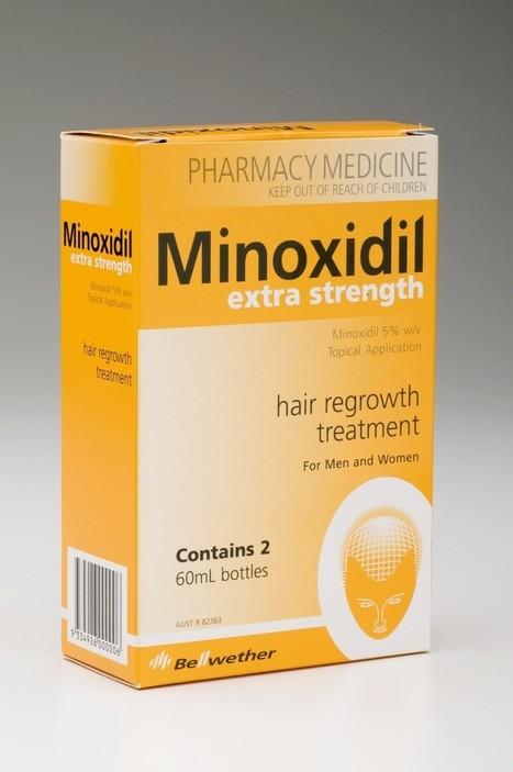 Minoxidil Hair Loss Treatment | Prohair Clinic | Scoop.it