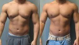 How to Get Rid of Gynecomastia Without Surgery? | Alumah's Weight Loss Blog | Wiff1981 | Scoop.it